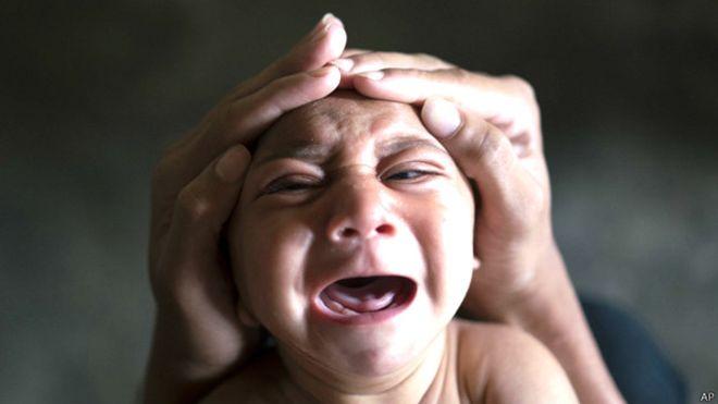 bebe-zika